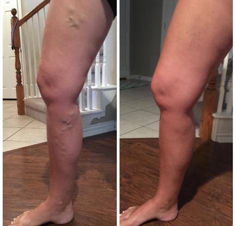 Kallal Medical Group Keller Texas - Varicose Vein Procedure Results