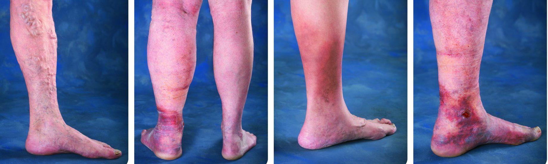Kallal Medical Group Keller Texas - Venous Disease Varicose Vein Treatment